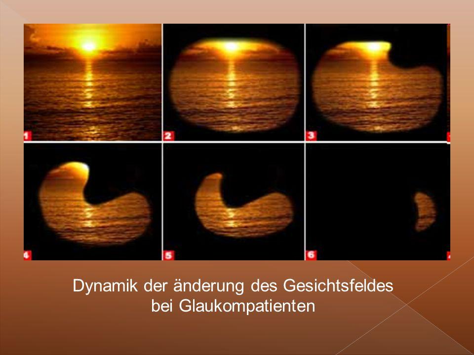 Dynamik der änderung des Gesichtsfeldes bei Glaukompatienten
