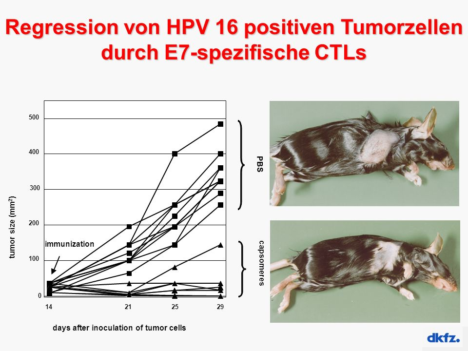 days after inoculation of tumor cells PBS capsomeres tumor size (mm 2 ) 500 252129 immunization 400 300 200 100 0 14 Regression von HPV 16 positiven T