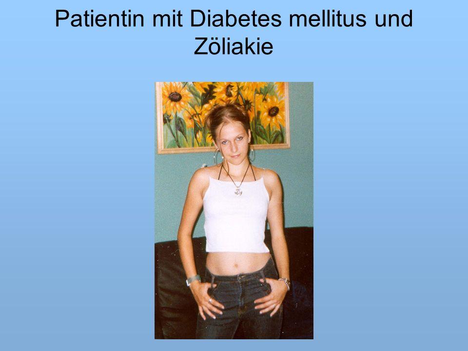 Patientin mit Diabetes mellitus und Zöliakie