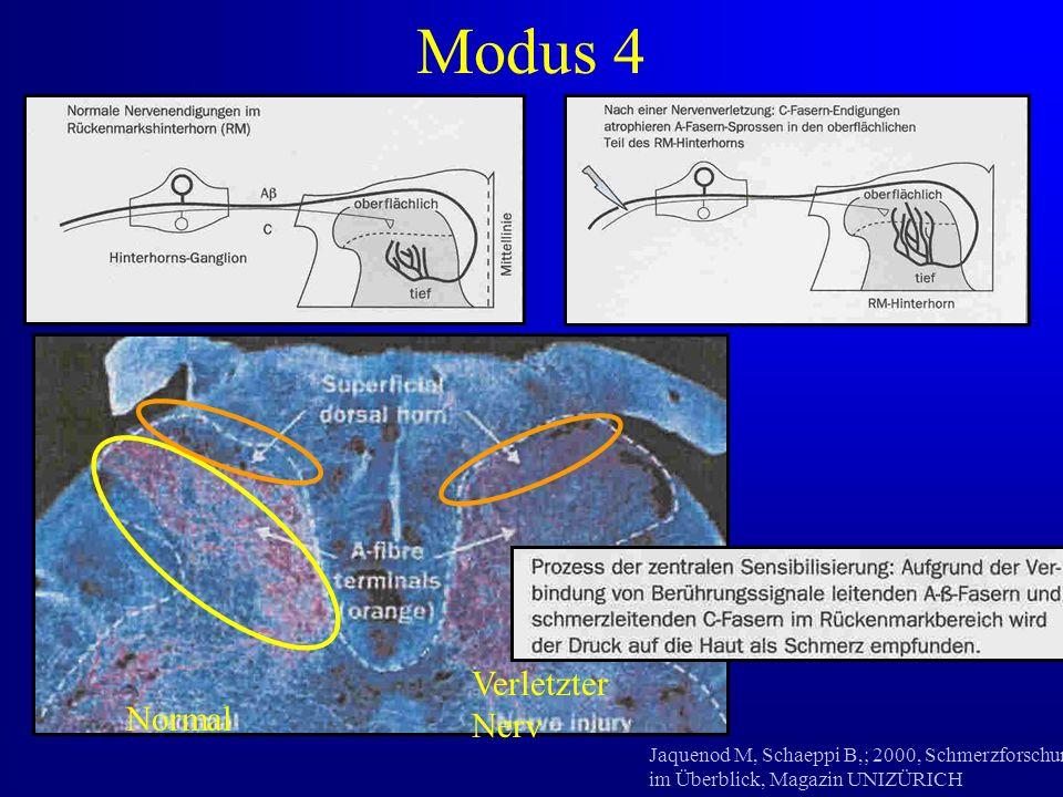 Jaquenod M, Schaeppi B,; 2000, Schmerzforschung im Überblick, Magazin UNIZÜRICH Normal Verletzter Nerv Modus 4