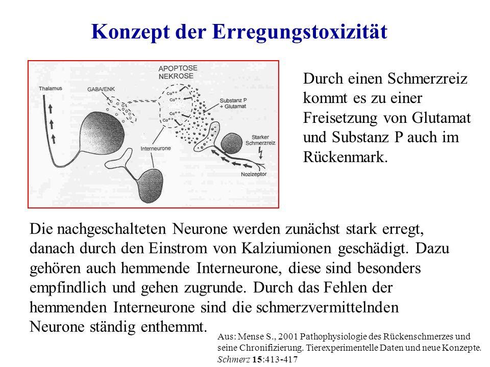 Konzept der Erregungstoxizität Die nachgeschalteten Neurone werden zunächst stark erregt, danach durch den Einstrom von Kalziumionen geschädigt.