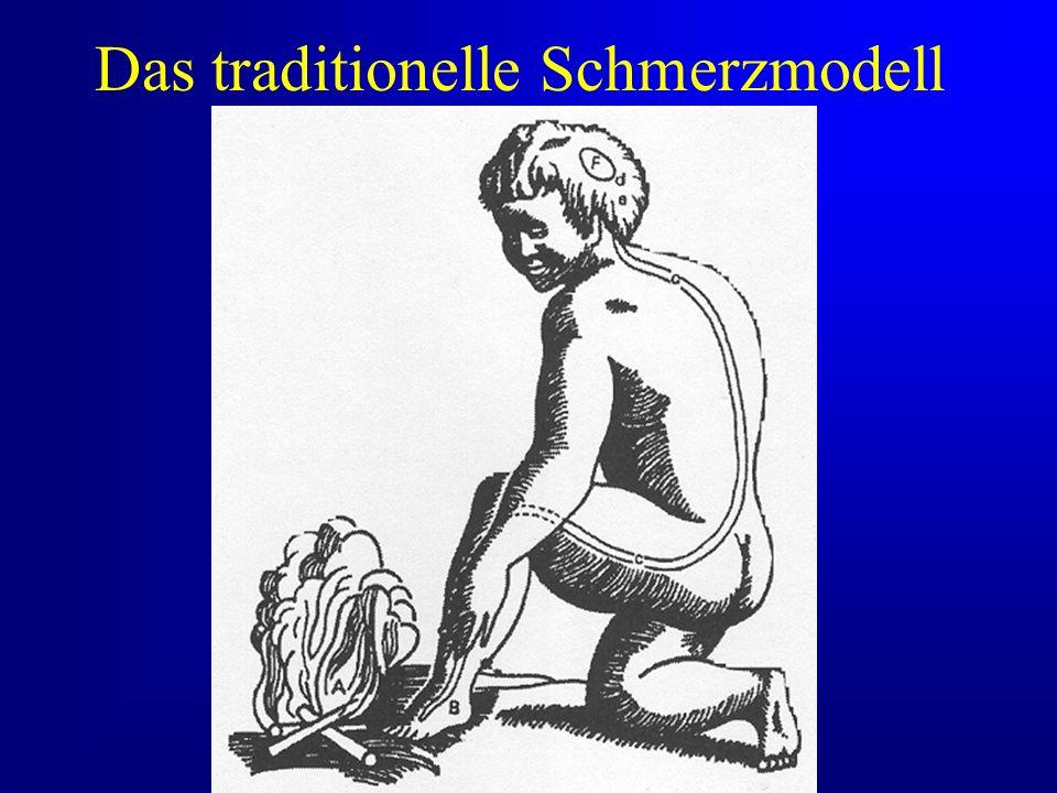 Das traditionelle Schmerzmodell