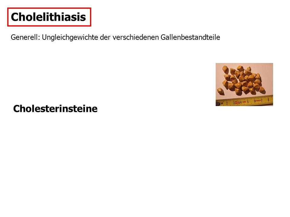Cholelithiasis Pigmentsteine: Folgen