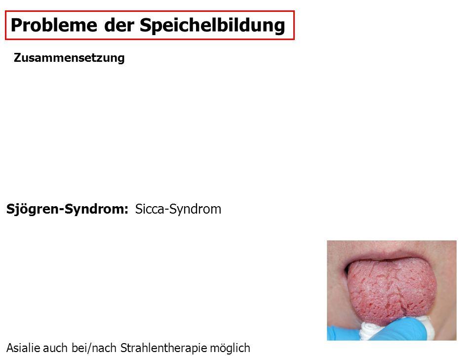 Probleme der Speichelbildung Sjögren-Syndrom: Sicca-Syndrom Asialie auch bei/nach Strahlentherapie möglich Zusammensetzung