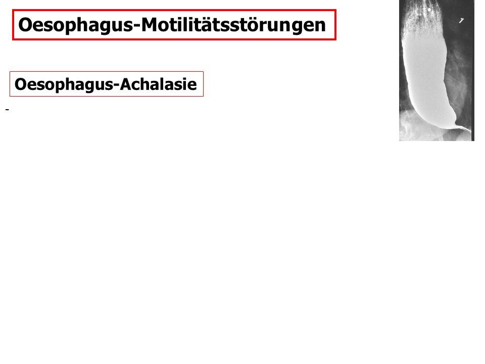 Oesophagus-Motilitätsstörungen Oesophagus-Achalasie -