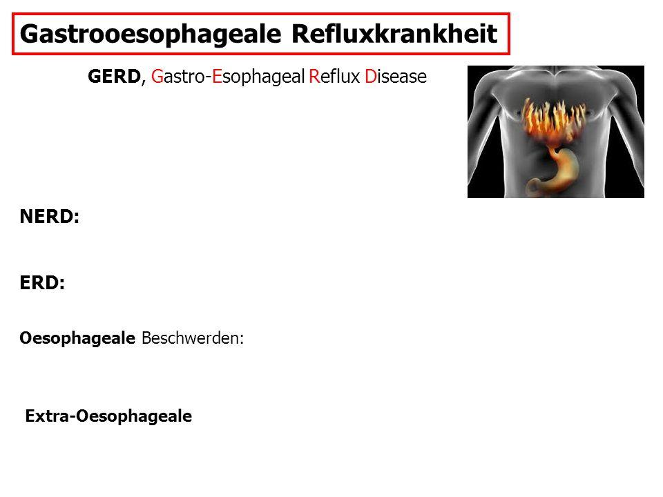 Gastrooesophageale Refluxkrankheit GERD, Gastro-Esophageal Reflux Disease NERD: ERD: Oesophageale Beschwerden: Extra-Oesophageale