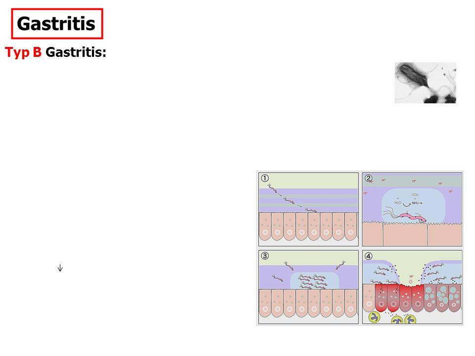 Typ B Gastritis: