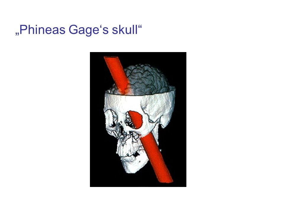 """Phineas Gage's skull"