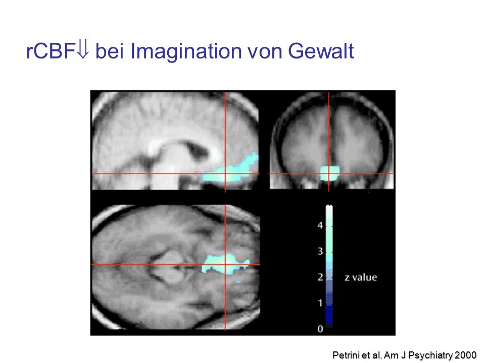 rCBF  bei Imagination von Gewalt Petrini et al. Am J Psychiatry 2000