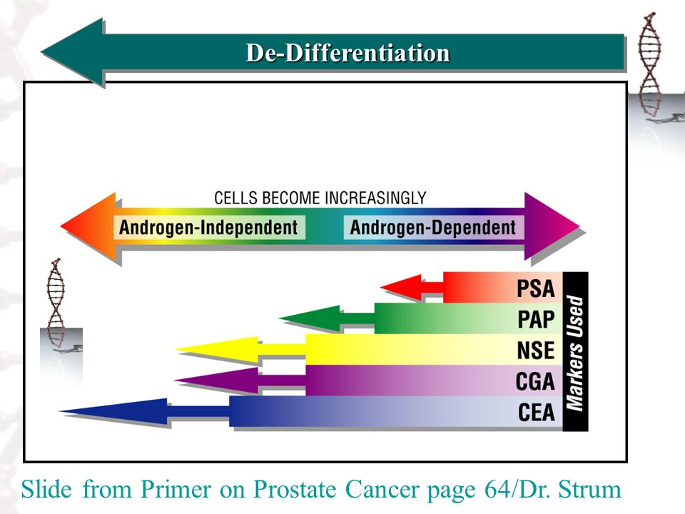 De-DifferentiationDe-Differentiation Slide from Primer on Prostate Cancer page 64/Dr. Strum