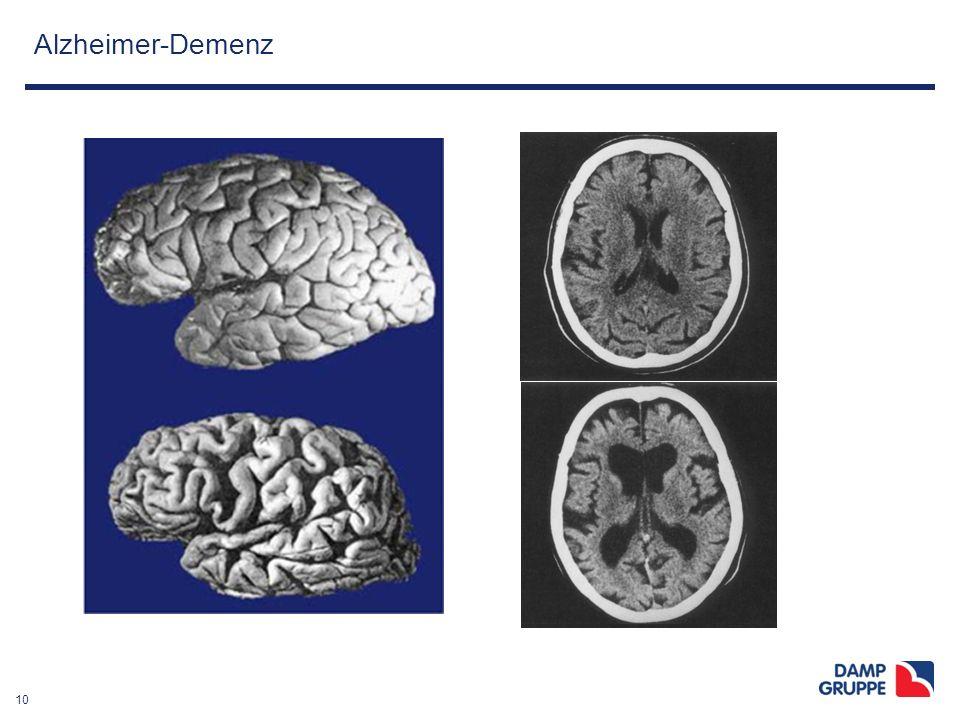 10 Alzheimer-Demenz 4.13
