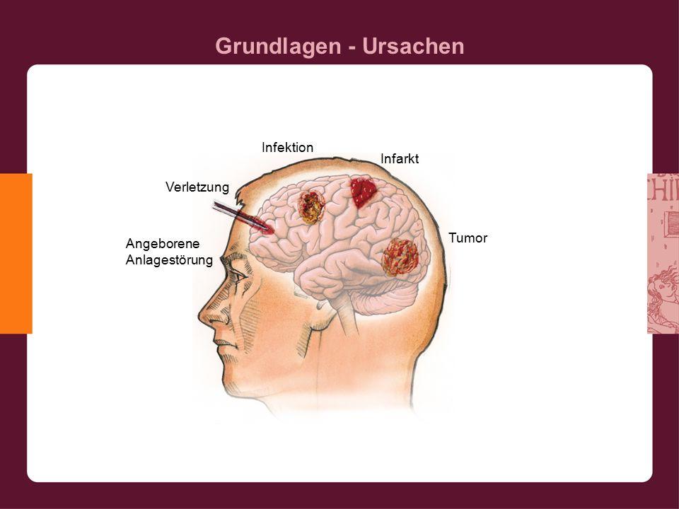 Grundlagen - Ursachen Verletzung Infektion Infarkt Tumor Angeborene Anlagestörung