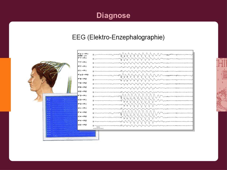 Diagnose EEG (Elektro-Enzephalographie)