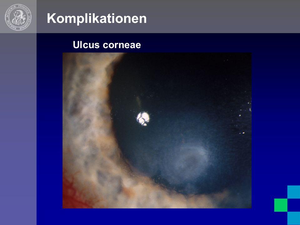 Komplikationen Ulcus corneae