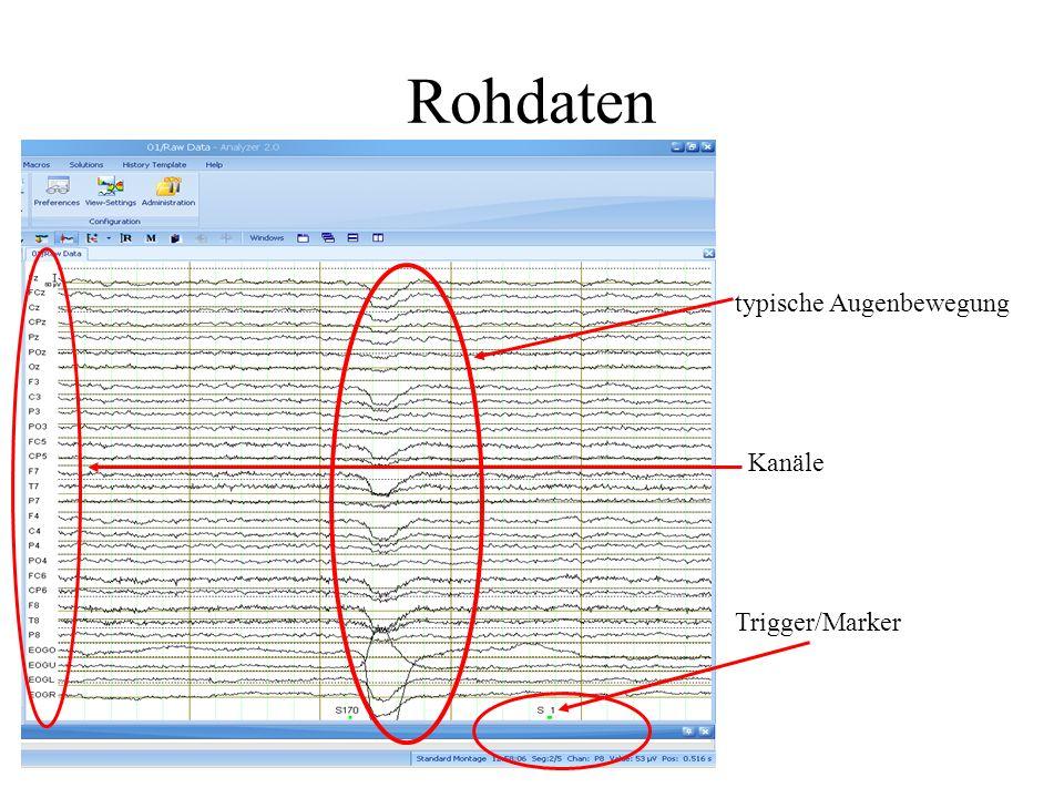 Rohdaten typische Augenbewegung Kanäle Trigger/Marker