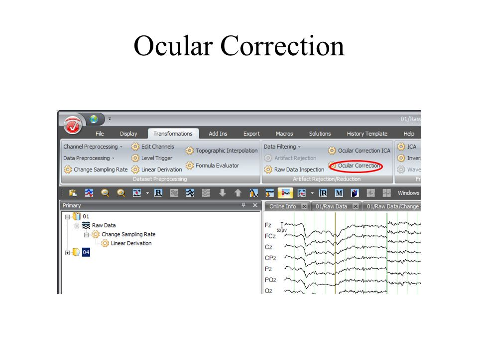 Ocular Correction