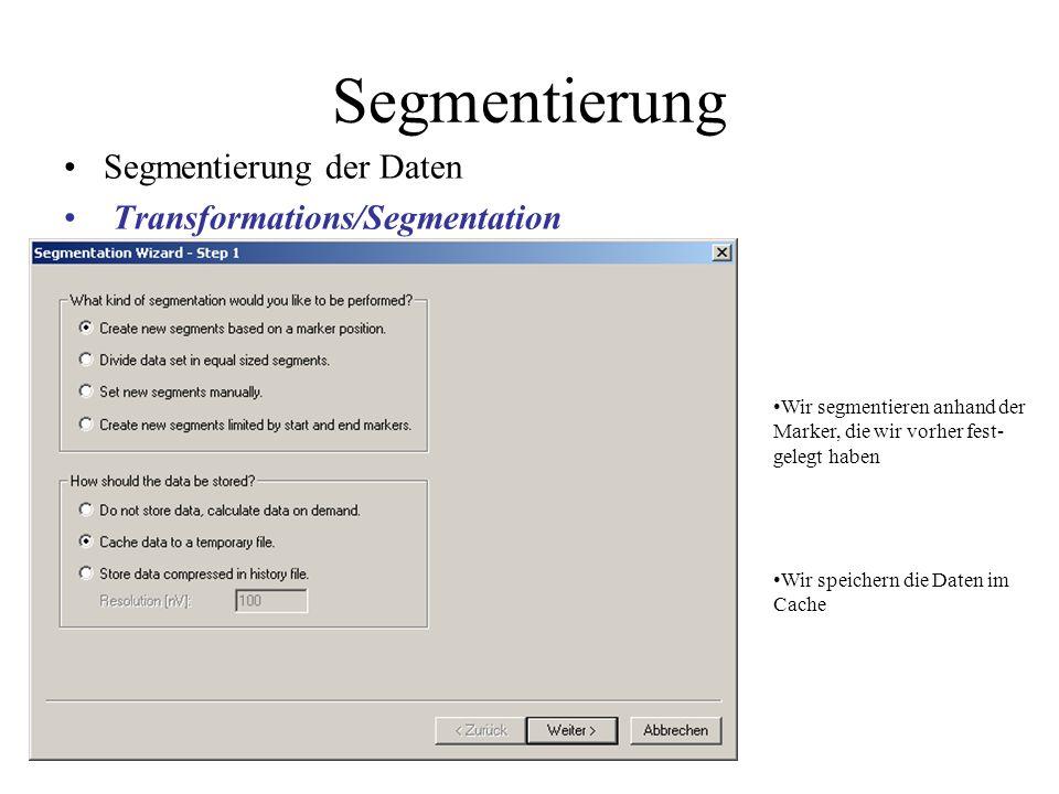 Segmentierung der Daten Transformations/Segmentation Wir segmentieren anhand der Marker, die wir vorher fest- gelegt haben Wir speichern die Daten im