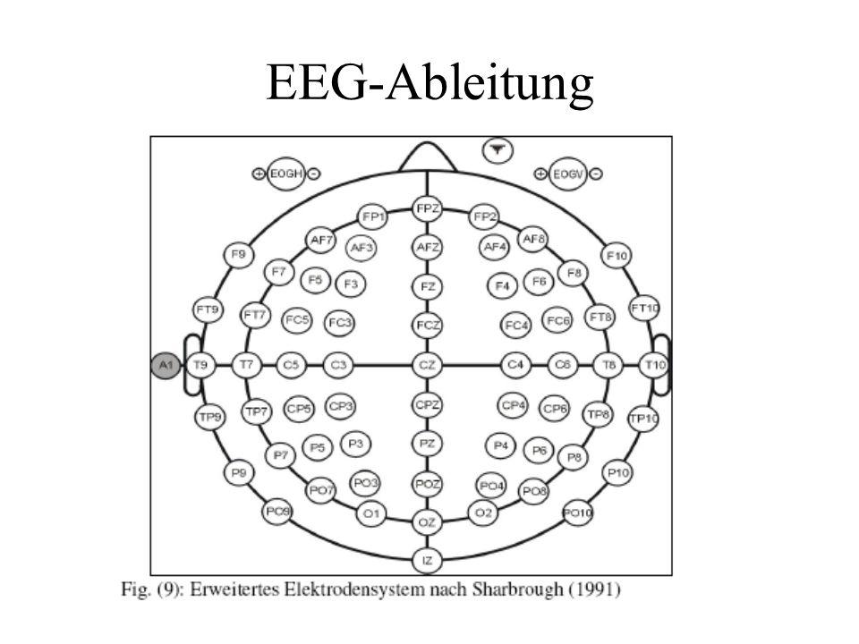 EEG Ableitung Es entsteht ein Spannungs-Zeit-Diagramm Unterscheidung zwischen: –Spontanaktivität –ereigniskorrelierte Aktivität http://infokurs.de/wiki/index.php?title=Bild:Signal1.gif