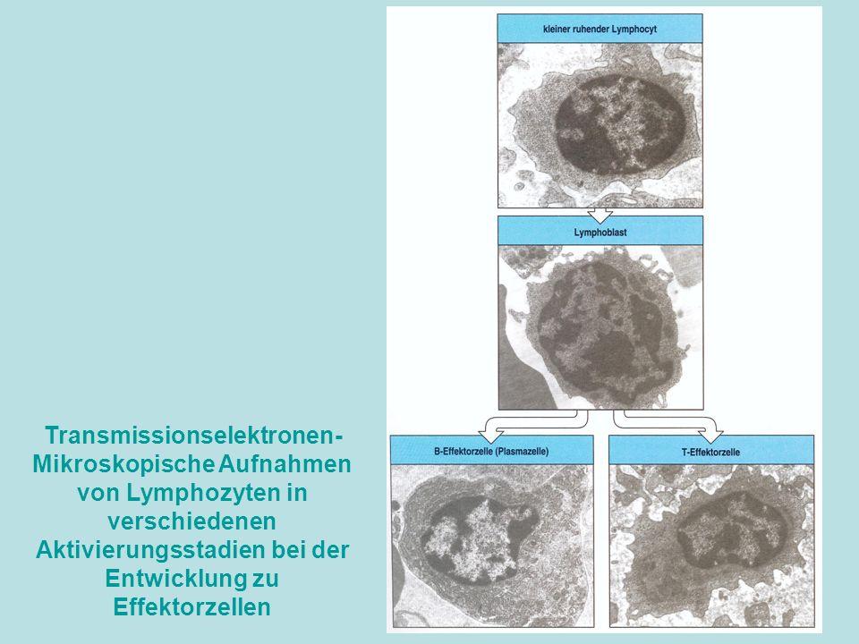 Transmissionselektronen- Mikroskopische Aufnahmen von Lymphozyten in verschiedenen Aktivierungsstadien bei der Entwicklung zu Effektorzellen