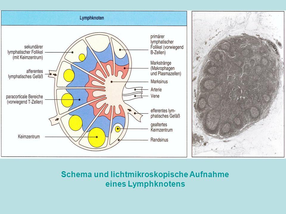 Schema und lichtmikroskopische Aufnahme eines Lymphknotens