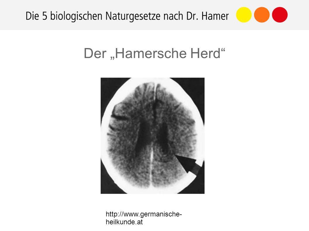 """http://www.germanische- heilkunde.at Der """"Hamersche Herd"""