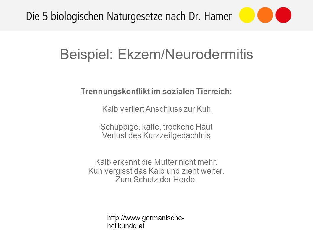 http://www.germanische- heilkunde.at Beispiel: Ekzem/Neurodermitis Trennungskonflikt im sozialen Tierreich: Kalb verliert Anschluss zur Kuh Schuppige, kalte, trockene Haut Verlust des Kurzzeitgedächtnis Kalb erkennt die Mutter nicht mehr.