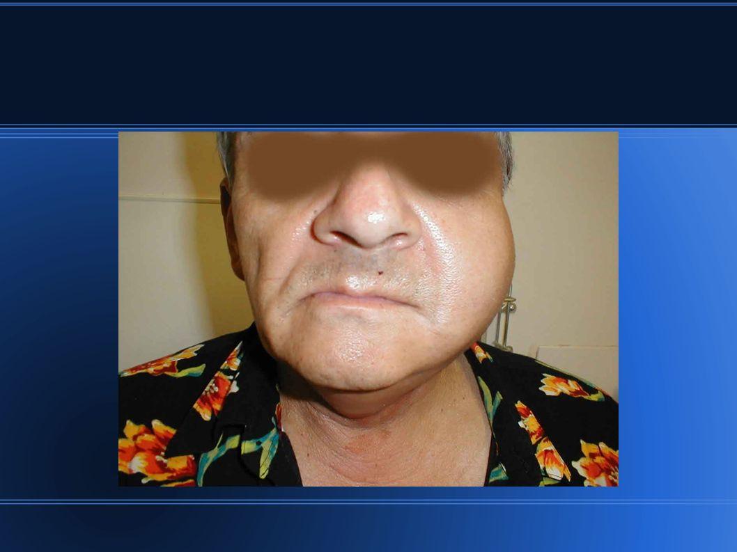 Ziele der Prophylaxen Erhaltung der Kautätigkeit Förderung des Speichelflusses Infektionsprophylaxe Intake Schleimhaut Belagfreie Zunge Geschmeidige Lippen Beschwerdefreie Nahrungsaufnahme Wohlbefinden fördern