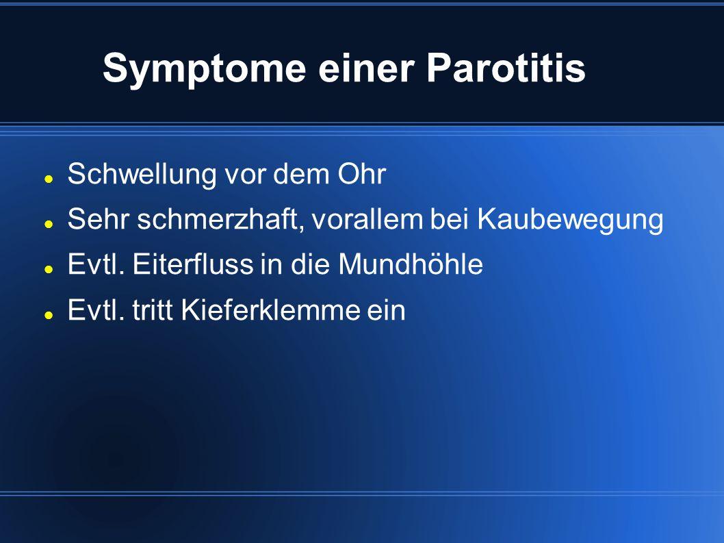 Symptome einer Parotitis Schwellung vor dem Ohr Sehr schmerzhaft, vorallem bei Kaubewegung Evtl.