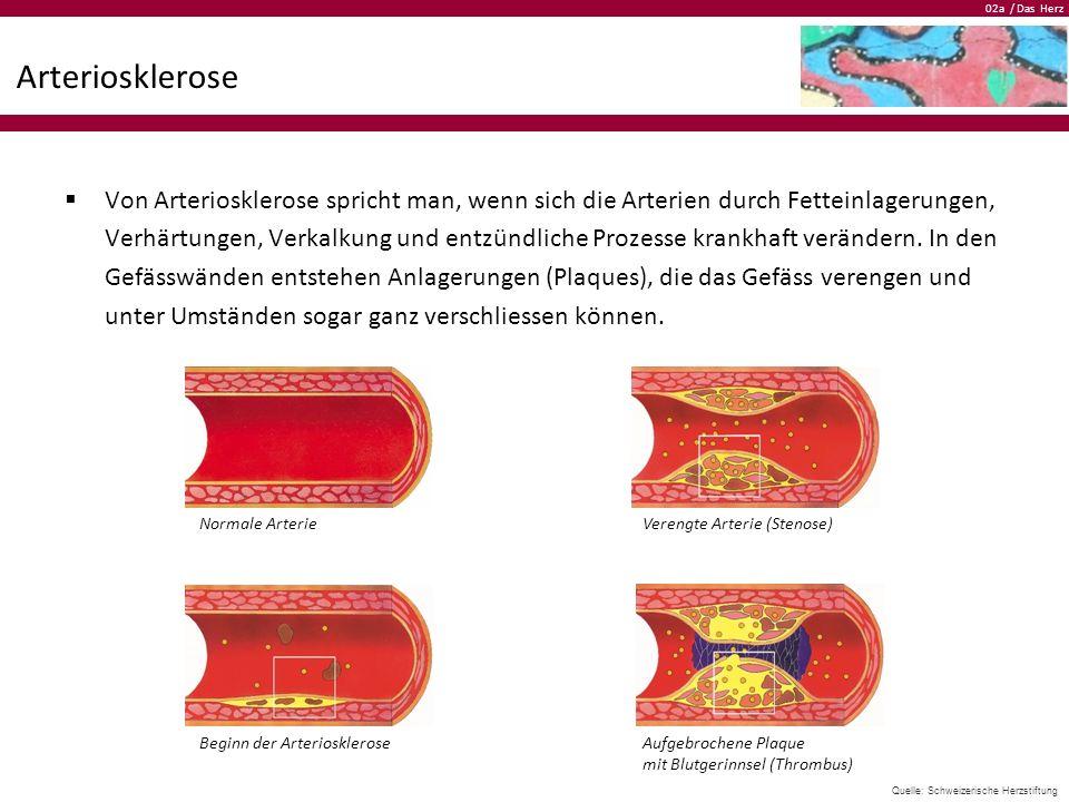 02a / Das Herz Arteriosklerose  Von Arteriosklerose spricht man, wenn sich die Arterien durch Fetteinlagerungen, Verhärtungen, Verkalkung und entzünd
