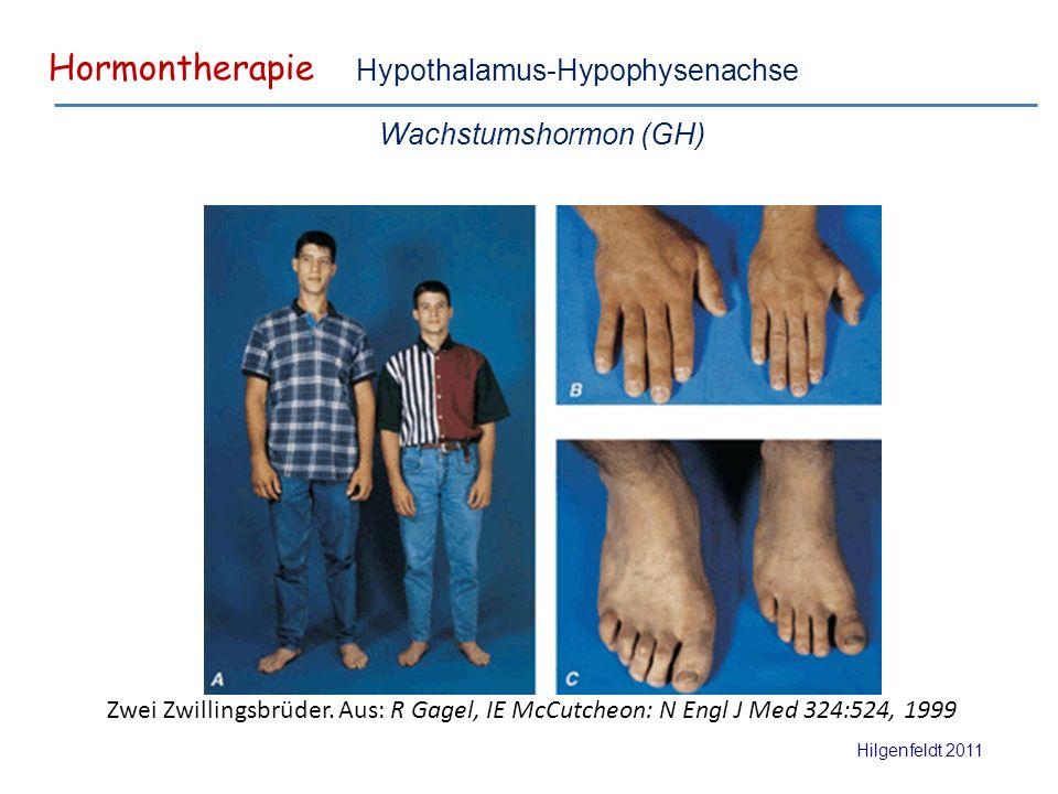 Hormontherapie Hilgenfeldt 2011 Hypothalamus-Hypophysenachse Wachstumshormon (GH) Zwei Zwillingsbrüder.