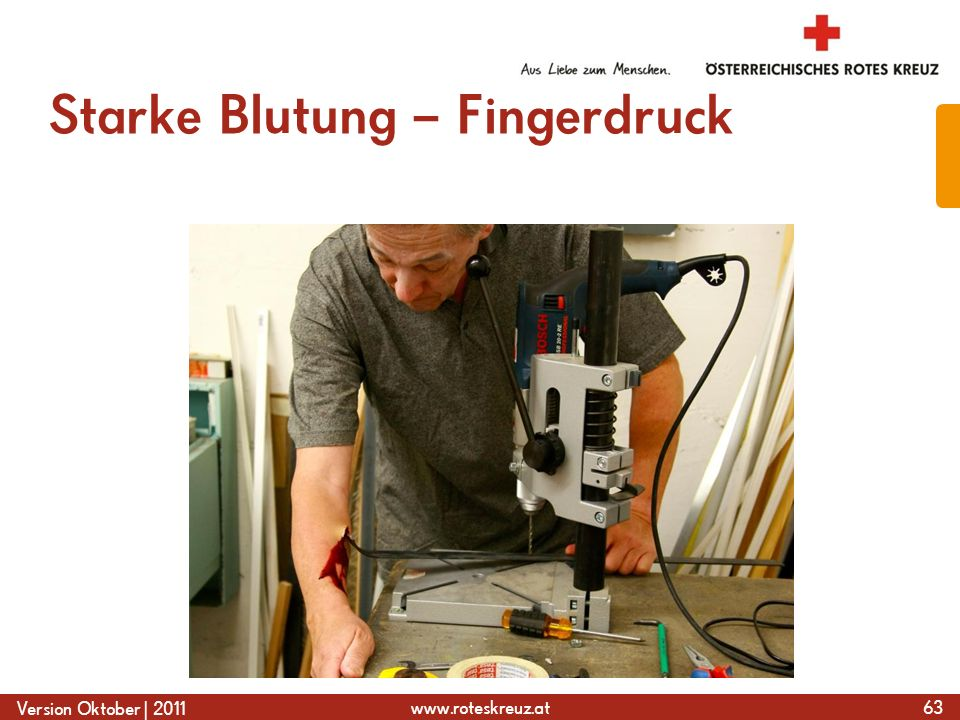 www.roteskreuz.at Version Oktober | 2011 Starke Blutung – Fingerdruck 63