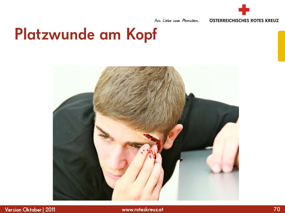 www.roteskreuz.at Version Oktober | 2011 Platzwunde am Kopf 70