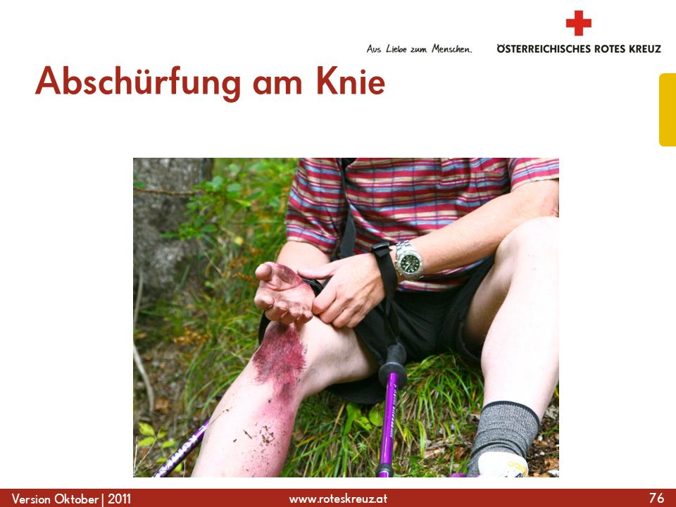 www.roteskreuz.at Version Oktober | 2011 Abschürfung am Knie 76
