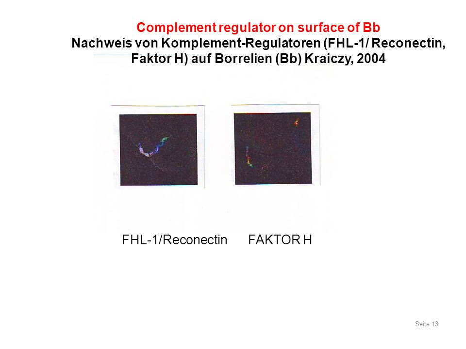 FHL-1/Reconectin FAKTOR H Seite 13 Complement regulator on surface of Bb Nachweis von Komplement-Regulatoren (FHL-1/ Reconectin, Faktor H) auf Borreli