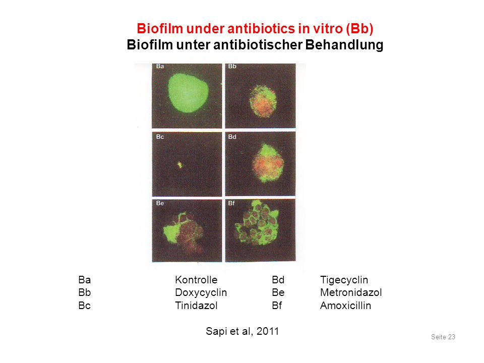 BaKontrolleBdTigecyclin Bb DoxycyclinBeMetronidazol Bc Tinidazol BfAmoxicillin Sapi et al, 2011 Seite 23 Biofilm under antibiotics in vitro (Bb) Biofilm unter antibiotischer Behandlung