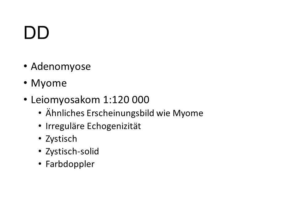 DD Adenomyose Myome Leiomyosakom 1:120 000 Ähnliches Erscheinungsbild wie Myome Irreguläre Echogenizität Zystisch Zystisch-solid Farbdoppler