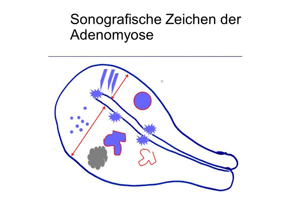 Sonografische Zeichen der Adenomyose