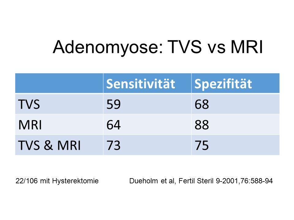 Adenomyose: TVS vs MRI SensitivitätSpezifität TVS5968 MRI6488 TVS & MRI7375 22/106 mit Hysterektomie Dueholm et al, Fertil Steril 9-2001,76:588-94