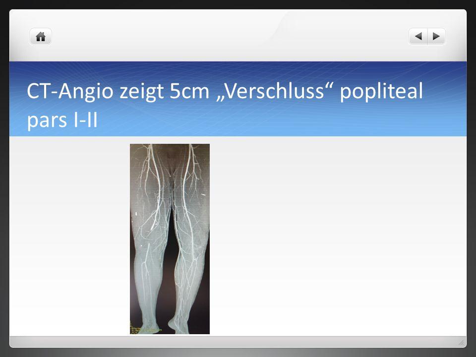 """CT-Angio zeigt 5cm """"Verschluss popliteal pars I-II"""