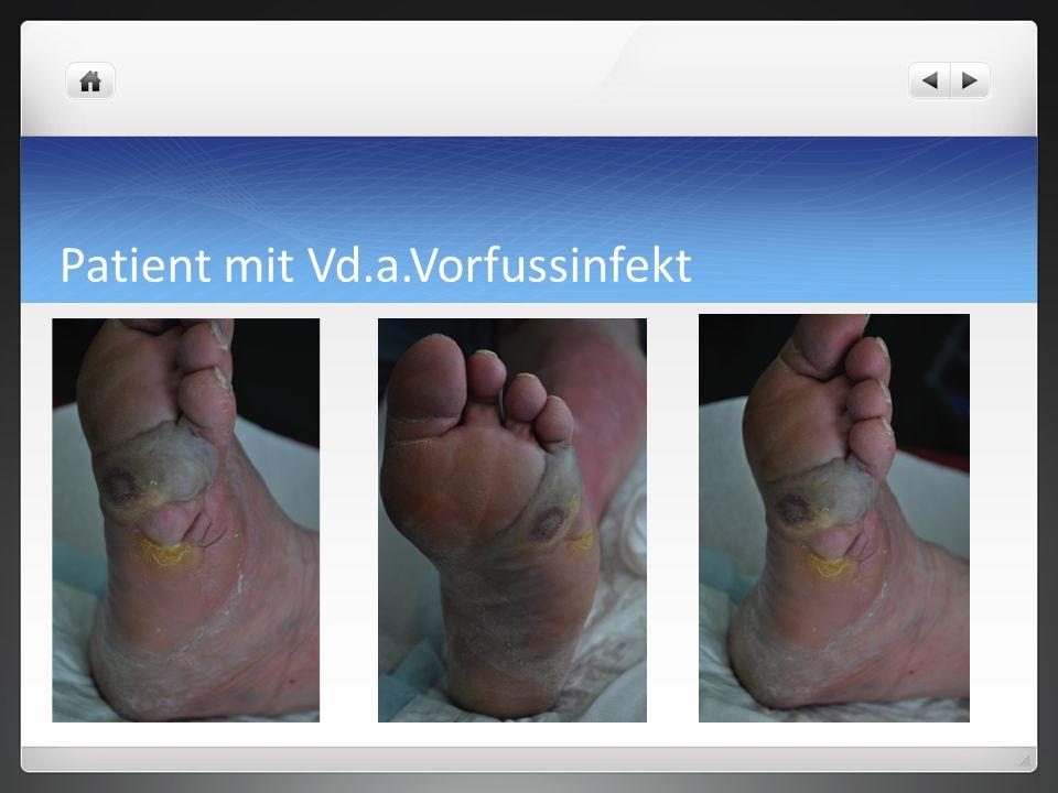 Patient mit Vd.a.Vorfussinfekt