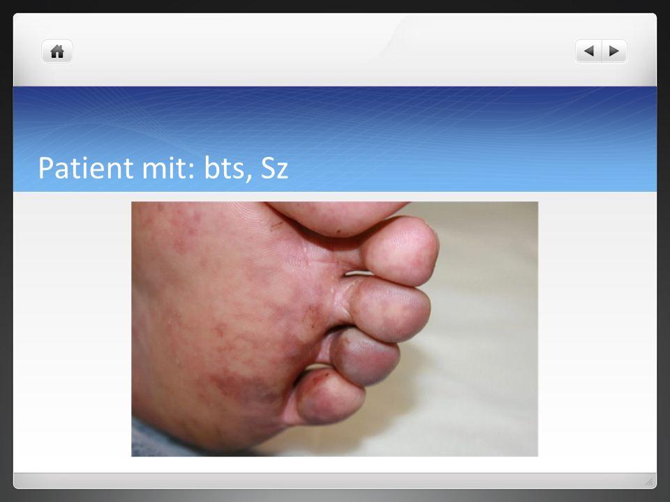 Patient mit: bts, Sz