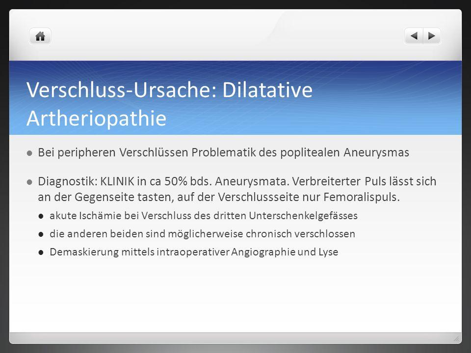 Verschluss-Ursache: Dilatative Artheriopathie Bei peripheren Verschlüssen Problematik des poplitealen Aneurysmas Diagnostik: KLINIK in ca 50% bds.