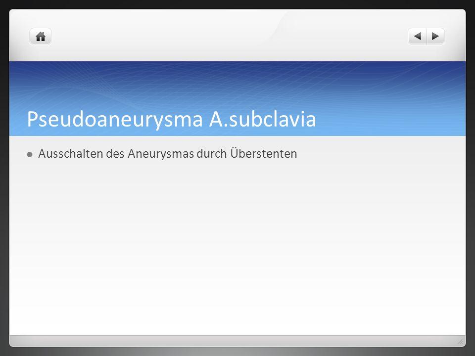 Pseudoaneurysma A.subclavia Ausschalten des Aneurysmas durch Überstenten