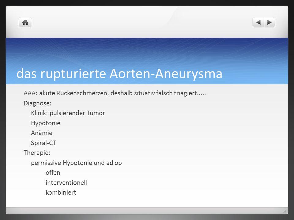 das rupturierte Aorten-Aneurysma AAA: akute Rückenschmerzen, deshalb situativ falsch triagiert......