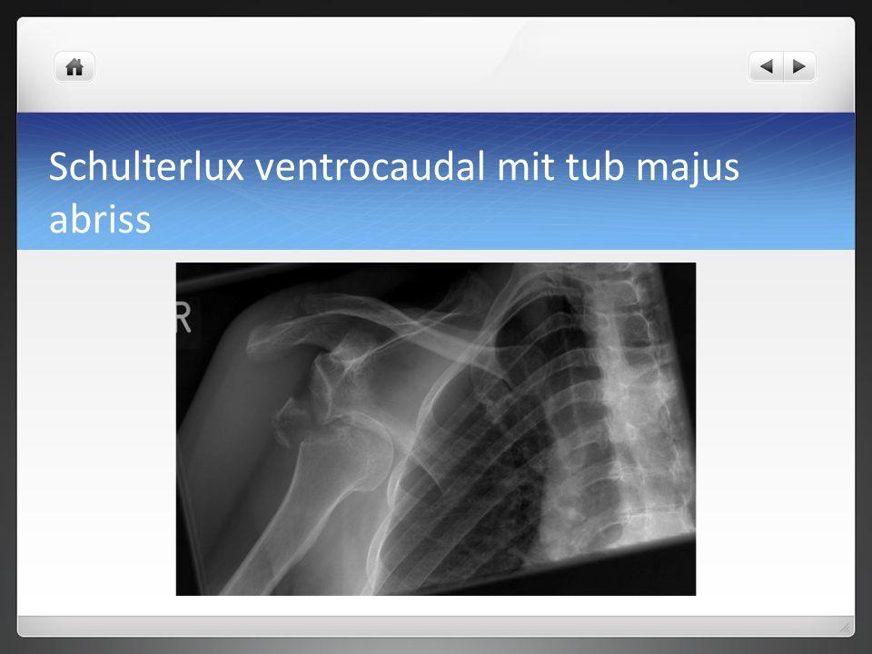 Schulterlux ventrocaudal mit tub majus abriss