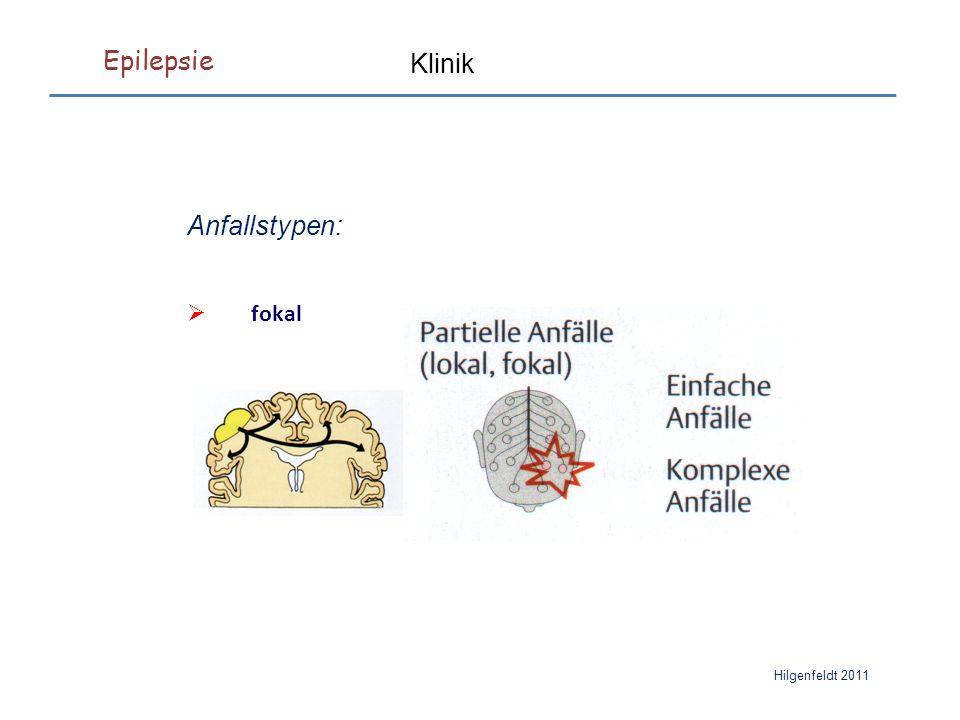Epilepsie Hilgenfeldt 2011 Klinik Anfallstypen:  fokal