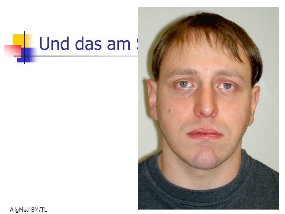 AllgMed BM/TL Und das am Sonntag!!