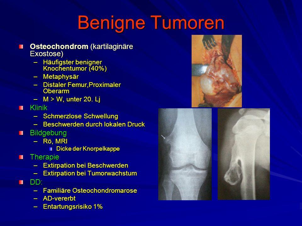 Benigne Tumoren Osteochondrom (kartilaginäre Exostose) –Häufigster benigner Knochentumor (40%) –Metaphysär –Distaler Femur,Proximaler Oberarm –M > W, unter 20.
