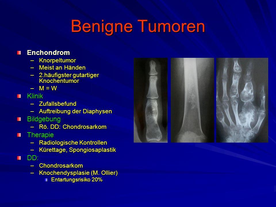 Benigne Tumoren Enchondrom –Knorpeltumor –Meist an Händen –2.häufigster gutartiger Knochentumor –M = W Klinik –Zufallsbefund –Auftreibung der Diaphysen Bildgebung –Rö.