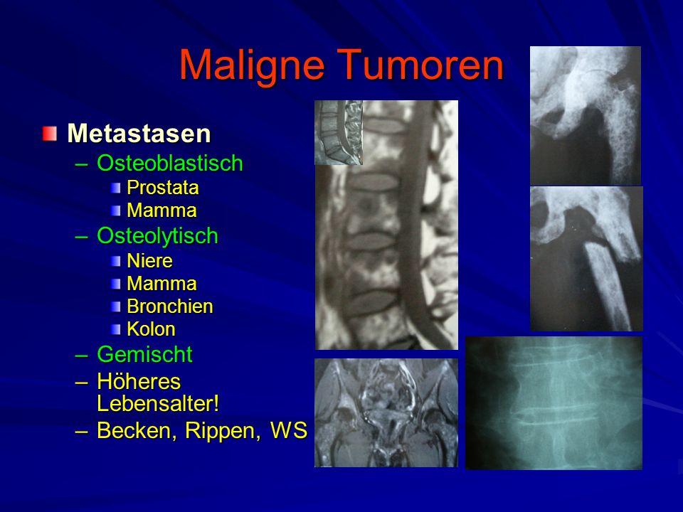 Maligne Tumoren Metastasen –Osteoblastisch ProstataMamma –Osteolytisch NiereMammaBronchienKolon –Gemischt –Höheres Lebensalter.